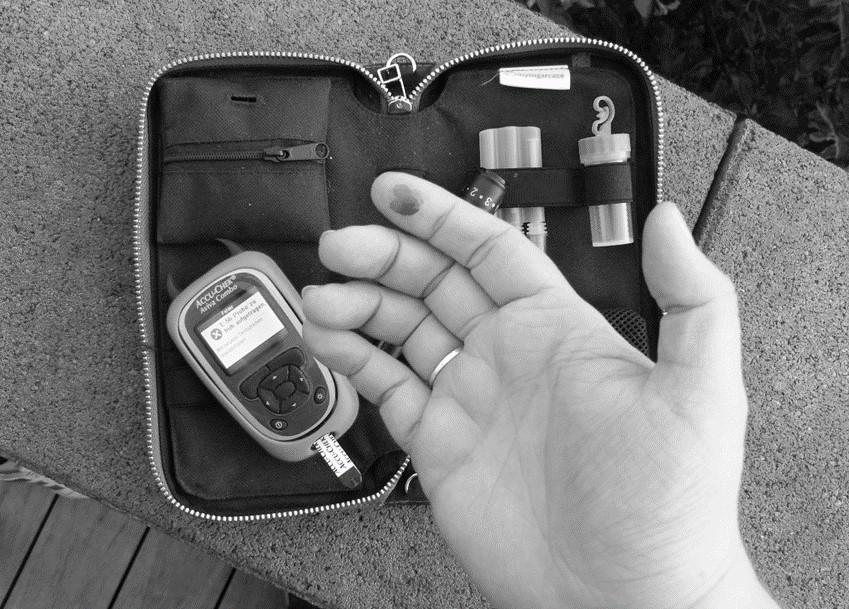 """DIABETISCHE TOLERANZ:  """"Könntest Du bitte woanders Deinen Blutzucker messen?"""" – Diese Frage löst bei vielen Diabetikern Wut und Empörung aus. Warum sollte ich gehen? Werde ich diskriminiert? Ich werde mich nicht wegen Dir einschränken! Toleriere meinen Diabetes! Wie? Du kennst den Unterschied zwischen Typ 1 und Typ 2 nicht?"""